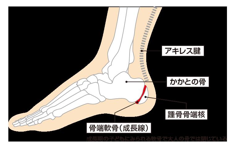 踵骨骨端症